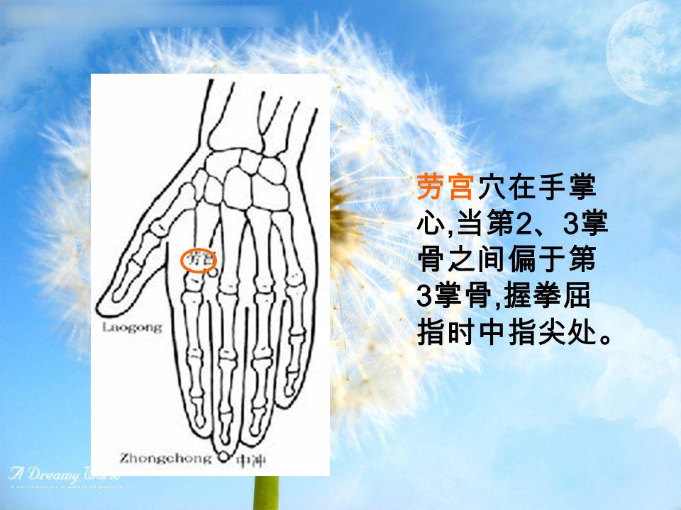 劳宫穴在手掌 心, 当第 2 、 3 掌 骨之间偏于第 3 掌骨, 握拳屈 指时中指尖处。