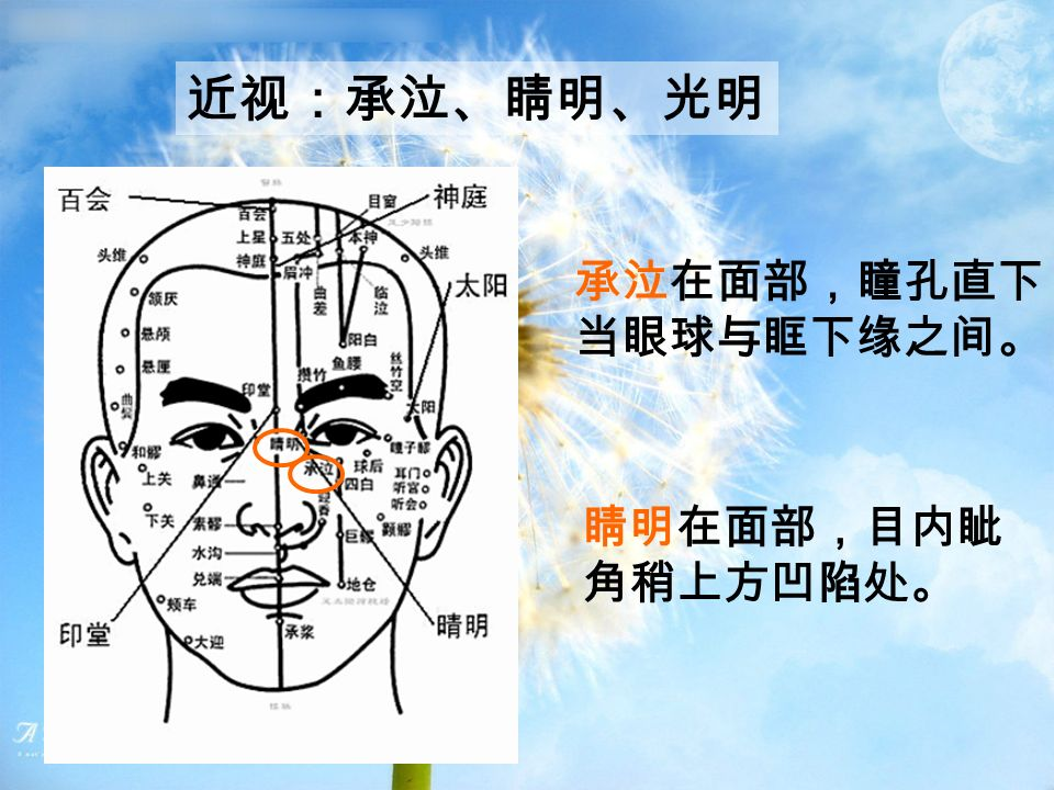 近视:承泣、睛明、光明 承泣在面部,瞳孔直下, 当眼球与眶下缘之间。 睛明在面部,目内眦 角稍上方凹陷处。