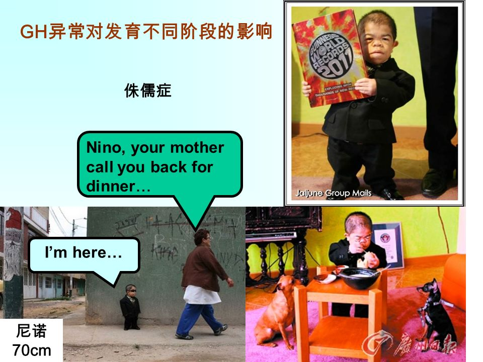 GH 异常对发育不同阶段的影响 侏儒症 尼诺 70cm Nino, your mother call you back for dinner… I'm here…