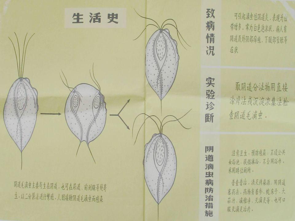 阴道毛滴虫 阴道毛滴虫 (染色) 阴道毛滴虫 阴道毛滴虫 (未染色)