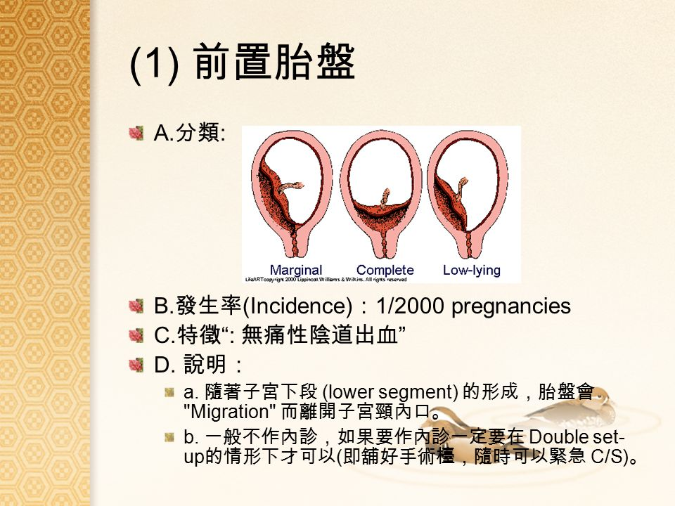 (1) 前置胎盤 A. 分類 : B. 發生率 (Incidence) : 1/2000 pregnancies C.