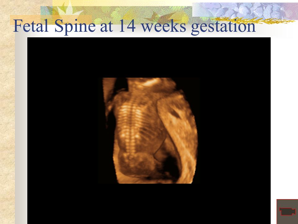 Fetal Spine at 14 weeks gestation