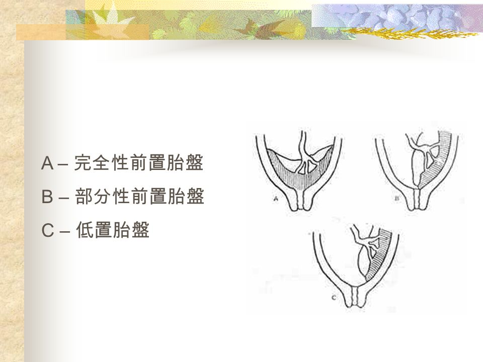 A – 完全性前置胎盤 B – 部分性前置胎盤 C – 低置胎盤
