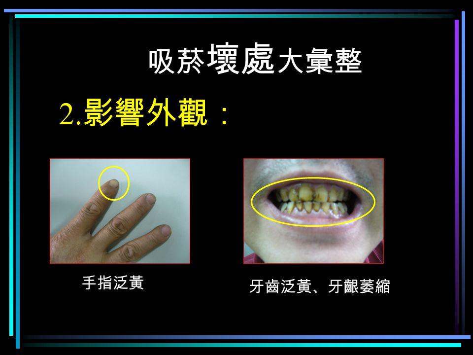 吸菸 壞處 大彙整 2. 影響外觀: 手指泛黃 牙齒泛黃、牙齦萎縮