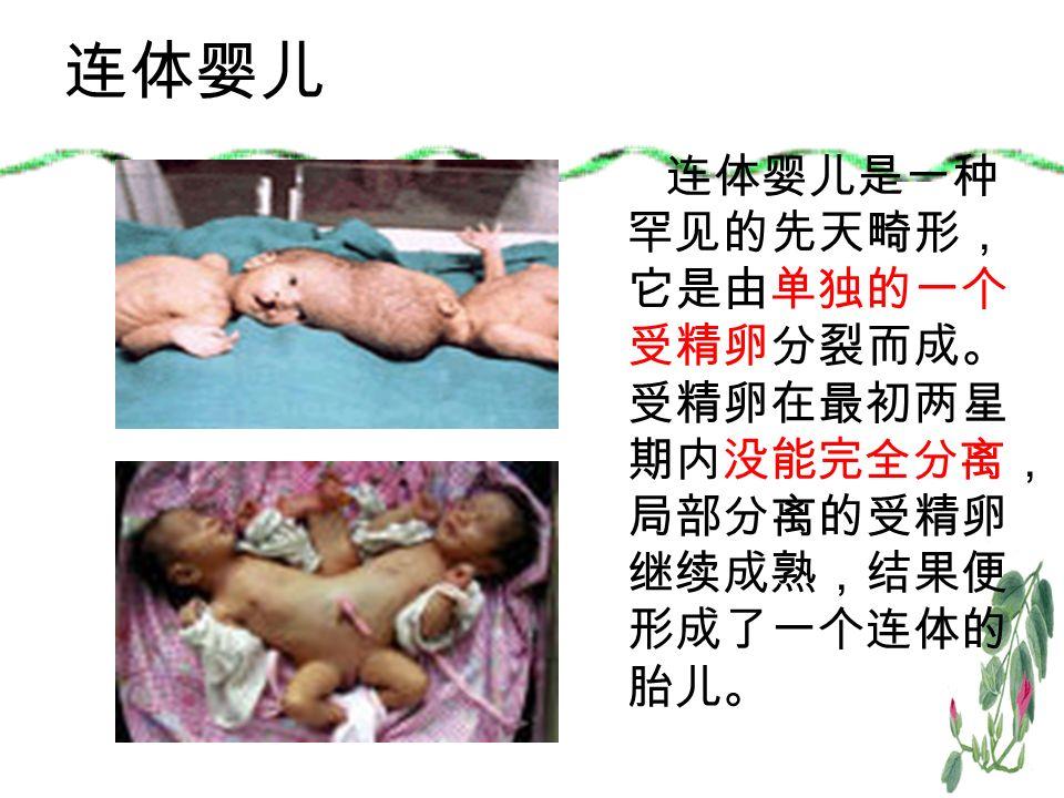 连体婴儿 连体婴儿是一种 罕见的先天畸形, 它是由单独的一个 受精卵分裂而成。 受精卵在最初两星 期内没能完全分离, 局部分离的受精卵 继续成熟,结果便 形成了一个连体的 胎儿。
