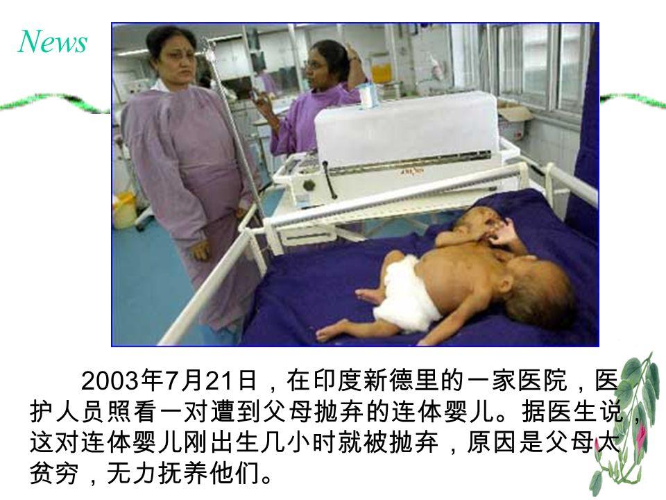 2003 年 7 月 21 日,在印度新德里的一家医院,医 护人员照看一对遭到父母抛弃的连体婴儿。据医生说, 这对连体婴儿刚出生几小时就被抛弃,原因是父母太 贫穷,无力抚养他们。 News