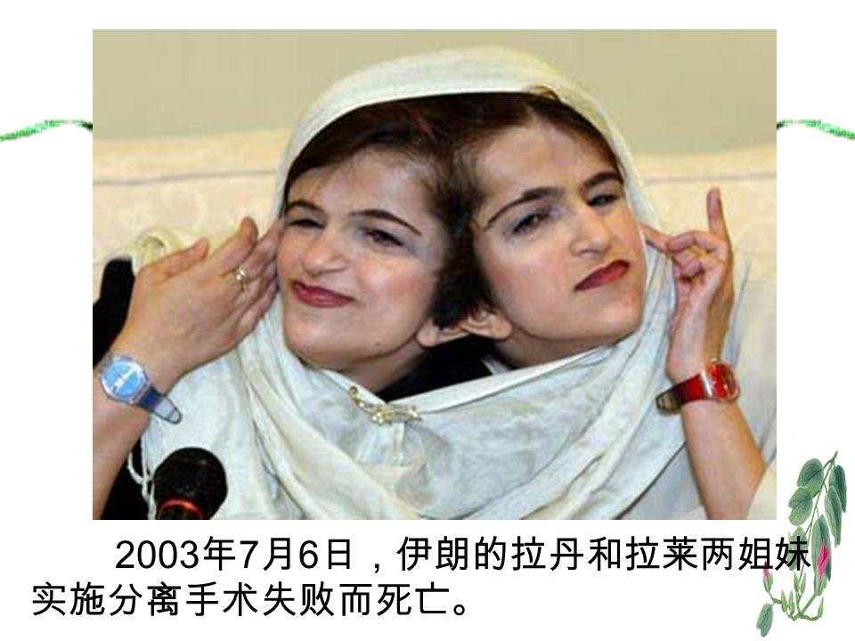 2003 年 7 月 6 日,伊朗的拉丹和拉莱两姐妹 实施分离手术失败而死亡。