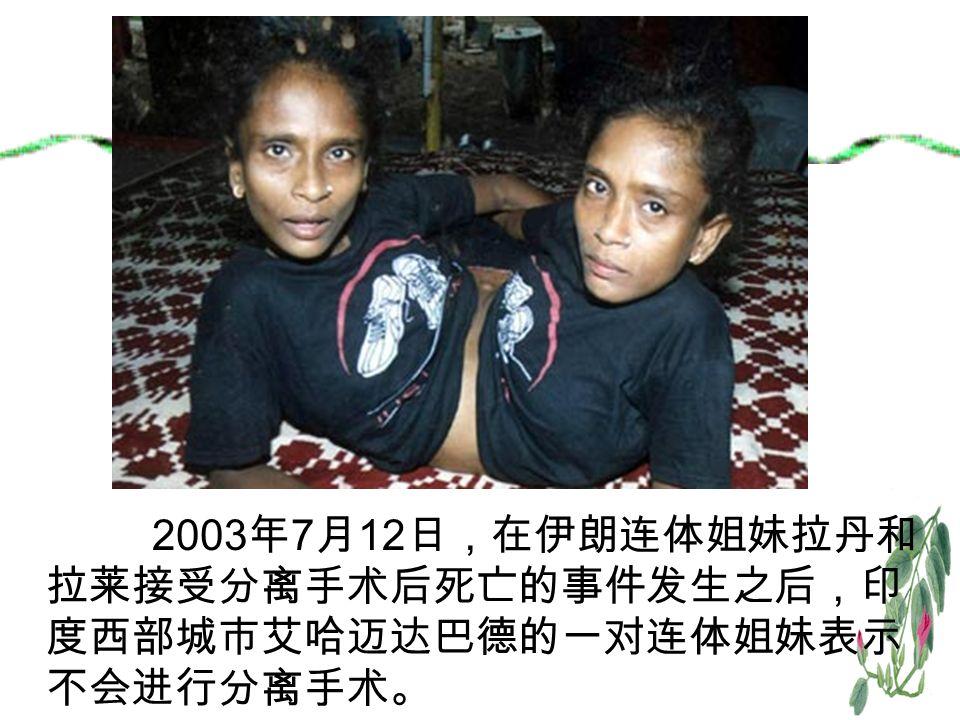 2003 年 7 月 12 日,在伊朗连体姐妹拉丹和 拉莱接受分离手术后死亡的事件发生之后,印 度西部城市艾哈迈达巴德的一对连体姐妹表示 不会进行分离手术。