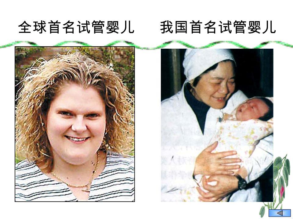 全球首名试管婴儿我国首名试管婴儿
