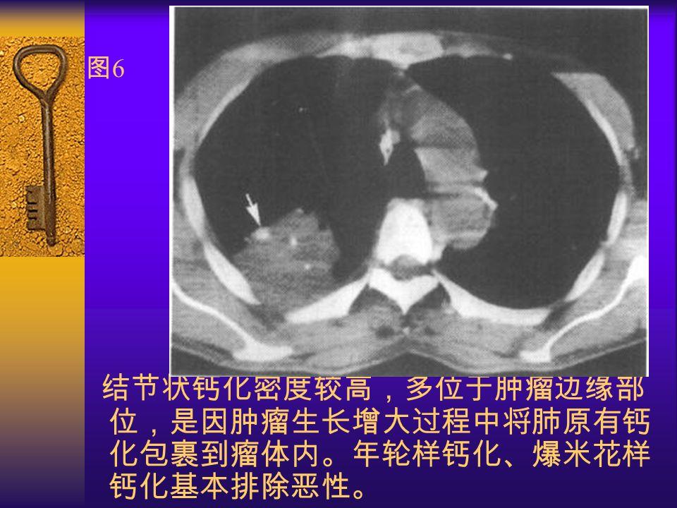 图6图6 结节状钙化密度较高,多位于肿瘤边缘部 位,是因肿瘤生长增大过程中将肺原有钙 化包裹到瘤体内。年轮样钙化、爆米花样 钙化基本排除恶性。