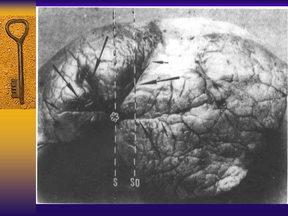 图 20 胸膜凹陷征