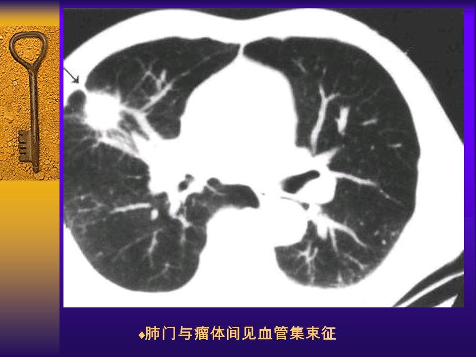 图 27 邻近血管支气管改变  肺门与瘤体间见血管集束征