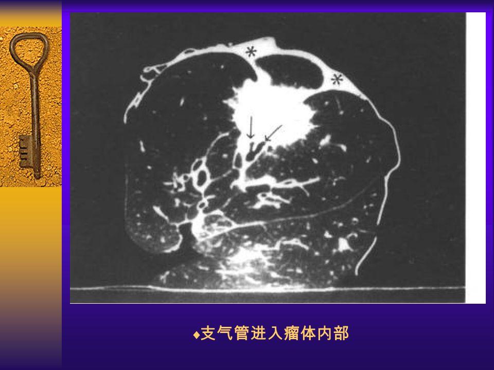 图 29  支气管进入瘤体内部