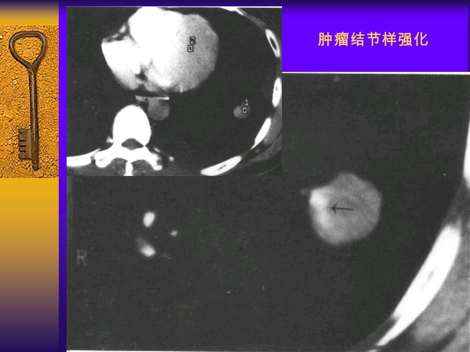 图 32 肿瘤结节样强化