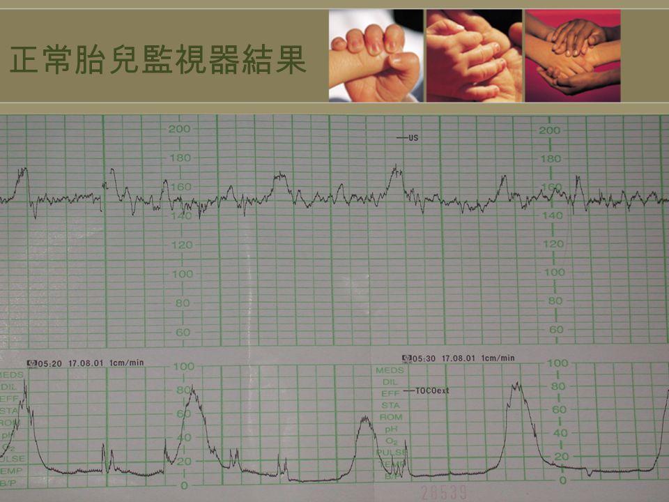 正常胎兒監視器結果