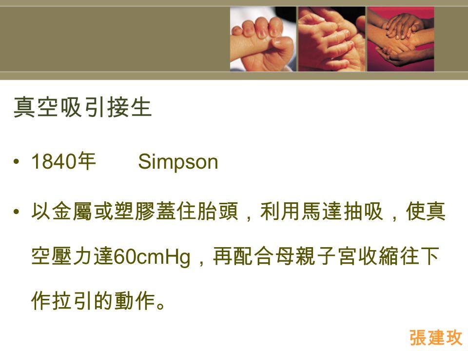 真空吸引接生 1840 年 Simpson 以金屬或塑膠蓋住胎頭,利用馬達抽吸,使真 空壓力達 60cmHg ,再配合母親子宮收縮往下 作拉引的動作。 張建玫