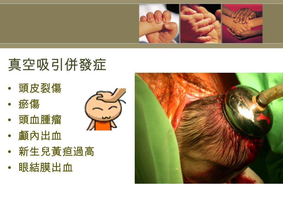 真空吸引併發症 頭皮裂傷 瘀傷 頭血腫瘤 顱內出血 新生兒黃疸過高 眼結膜出血