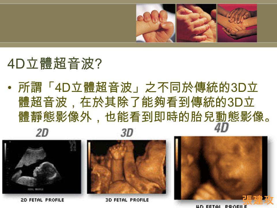 4D 立體超音波 所謂「 4D 立體超音波」之不同於傳統的 3D 立 體超音波,在於其除了能夠看到傳統的 3D 立 體靜態影像外,也能看到即時的胎兒動態影像。 張建玫