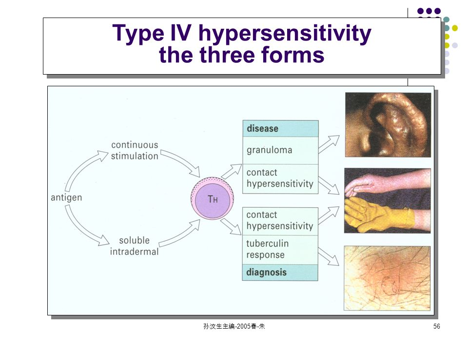 孙汶生主编 春 - 朱 56 Type IV hypersensitivity the three forms