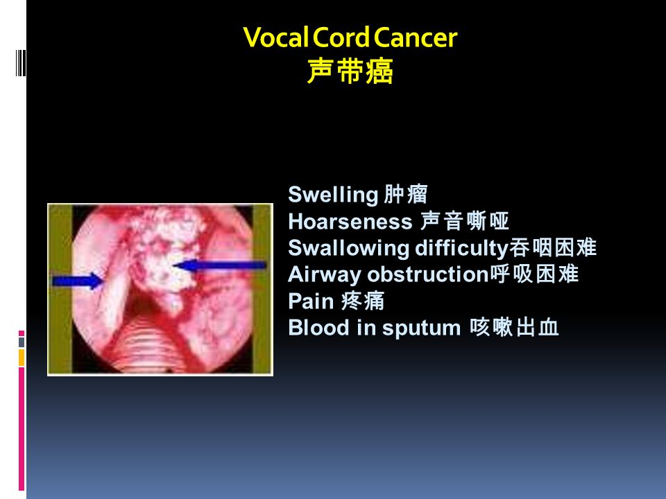 Vocal Cord Cancer 声带癌 Swelling 肿瘤 Hoarseness 声音嘶哑 Swallowing difficulty 吞咽困难 Airway obstruction 呼吸困难 Pain 疼痛 Blood in sputum 咳嗽出血