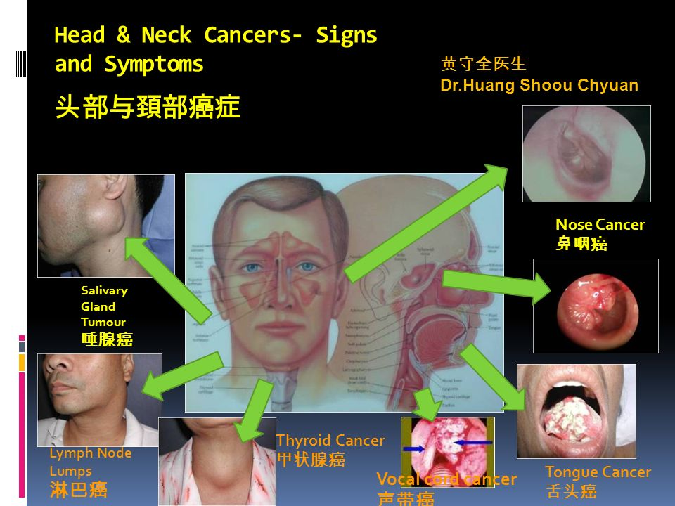 Head & Neck Cancers- Signs and Symptoms 头部与頚部癌症 Lymph Node Lumps 淋巴癌 Salivary Gland Tumour 唾腺癌 Thyroid Cancer 甲状腺癌 Vocal cord cancer 声带癌 Tongue Cancer 舌头癌 Nose Cancer 鼻咽癌 黄守全医生 Dr.Huang Shoou Chyuan