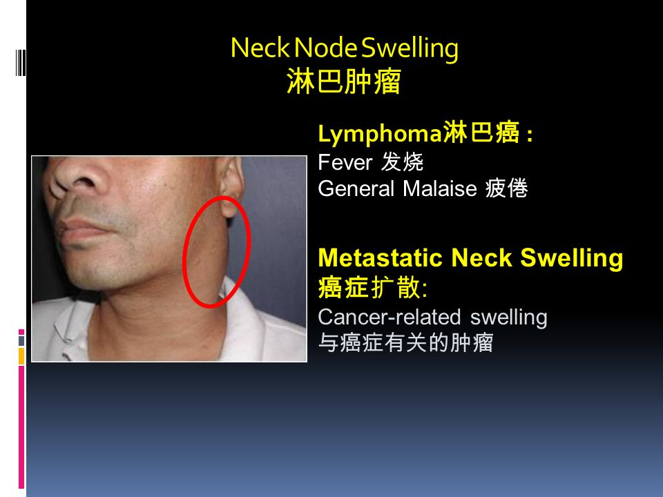 Neck Node Swelling 淋巴肿瘤 Lymphoma 淋巴癌 : Fever 发烧 General Malaise 疲倦 Metastatic Neck Swelling 癌症扩散 : Cancer-related swelling 与癌症有关的肿瘤